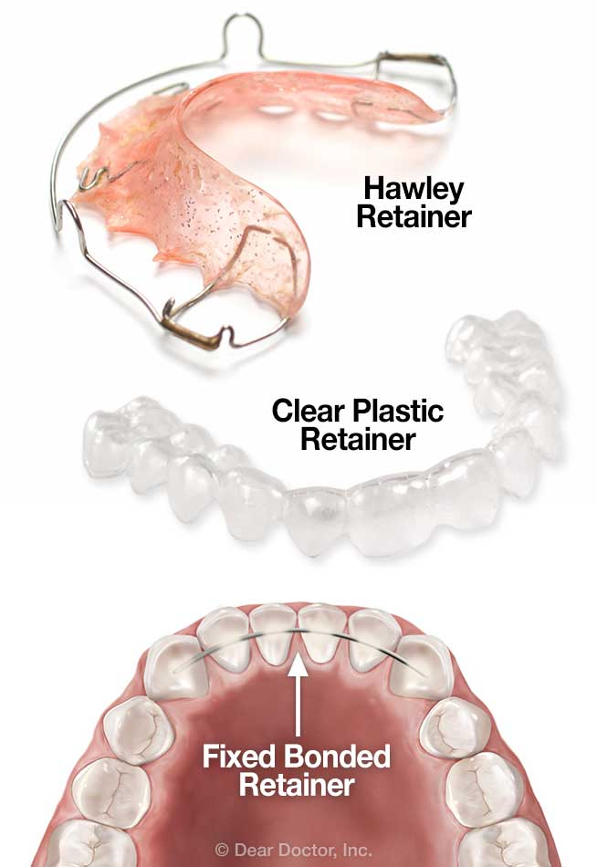 types-of-orthodontic-retainers
