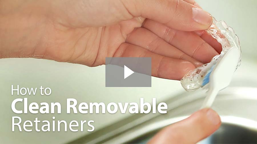 how-to-clean-removable-retainers-play